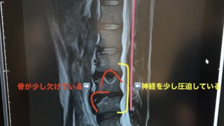 MRI画像 椎間板ヘルニア すべり症